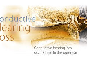 Conductive Hearing Loss - What Is It?
